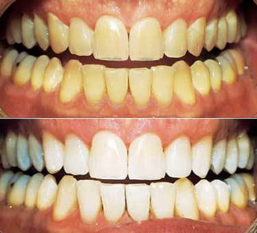 tandblegning før og efter