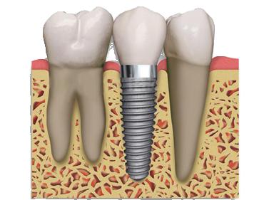 Implantat som tandlæge i hvidovre behandler med