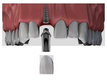 Implantat som tandlæge i hvidovre behandler patienter med