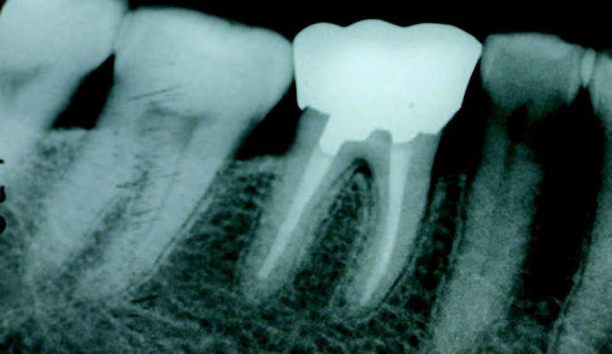 Røntgen billede af tand med rødder, hvor der er risiko