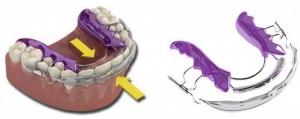 Tandregulering med Inman Aligner til lav pris hos Hvidovre Tandlæge,