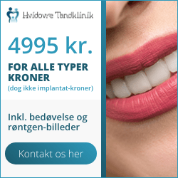 tandkroner og kroner hos tandlæge på tilbud