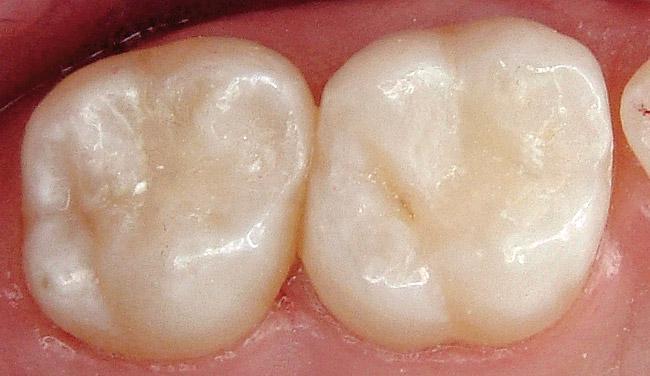 Få-lavet-en-plastfyldning-hos-Hvidovre-Tandklinik